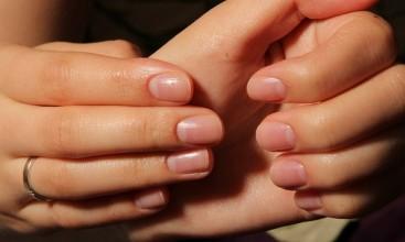 Критерії виліковування грибка нігтів