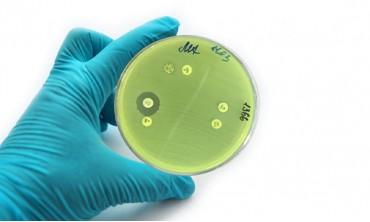 Придбана резистентність до антибіотиків
