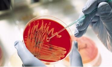 Время отбора и приёма БМ на микробиологию