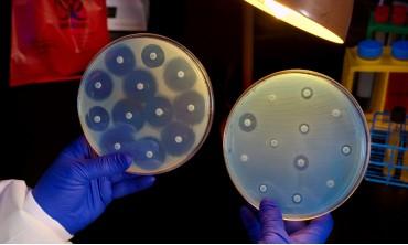Класичний бактеріологічний метод