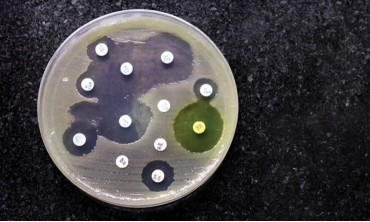 Synergy-тест. Подбор комбинации антибиотиков
