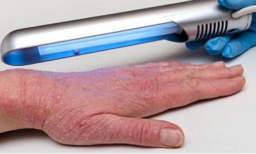 Фототерапія в лікуванні грибкових захворювань