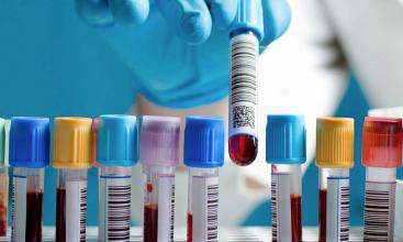 Загальноклінічне дослідження. Матеріал венозна кров