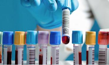 Розгорнутий аналіз крові. Референтні значення