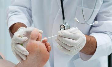 Від чого залежить швидкість лікування грибка нігтів?