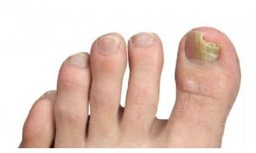Грибок нігтів?